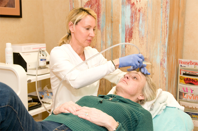 Patient receiving microdermabrasion treatment in Philadelphia, PA & Havertown, PA